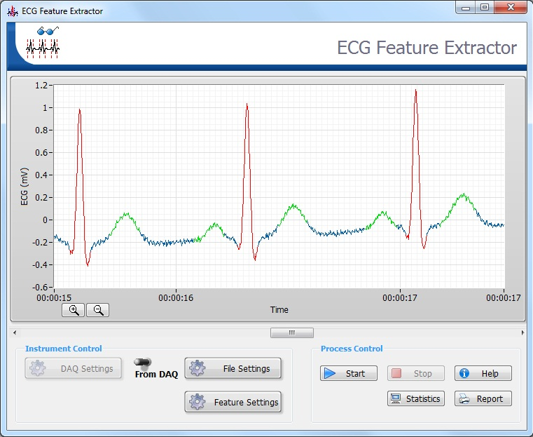 How to use LabVIEW Biomedical Toolkit - ECG Feature Extractor (Ver