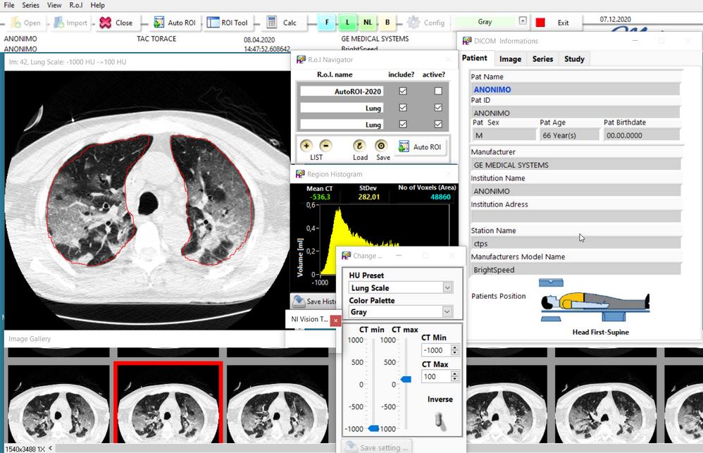 medical image processing.png