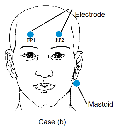 Solved: real time acquisiton and processing of EEG signal
