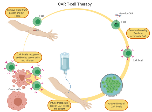 Figure 1.  CAR T-cell therapy cycle: cells are removed from the patient's blood, modified into CAR-T, expanded to obtain millions of cells and infused back to the patient (Diagram created with BioRender)